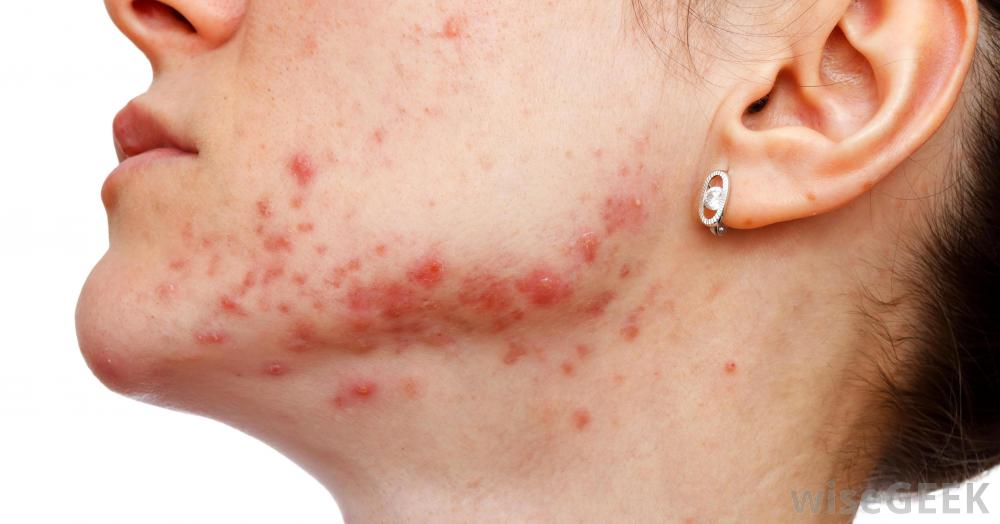 Anor Spa In Brooklyn Anatomy Of An Acne Treatment